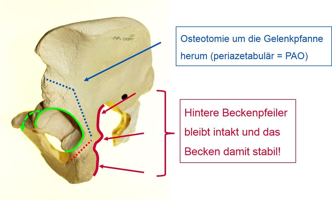 Beckenosteotomie PAO
